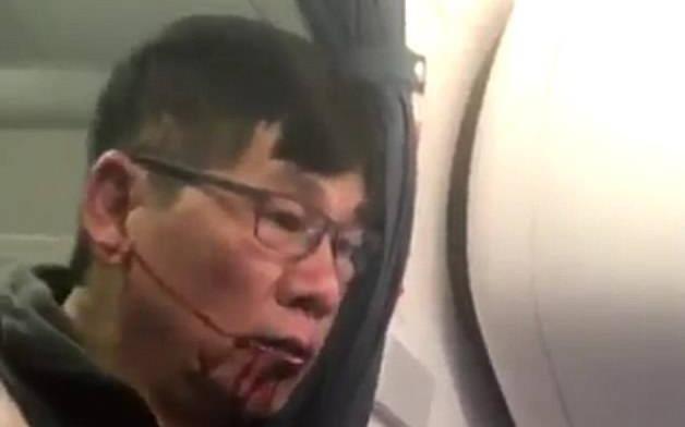 Dan mang phan no doi tay chay hang United Airlines hinh anh