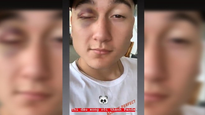 Văn Lâm khoe bị thâm mắt sau trận đấu