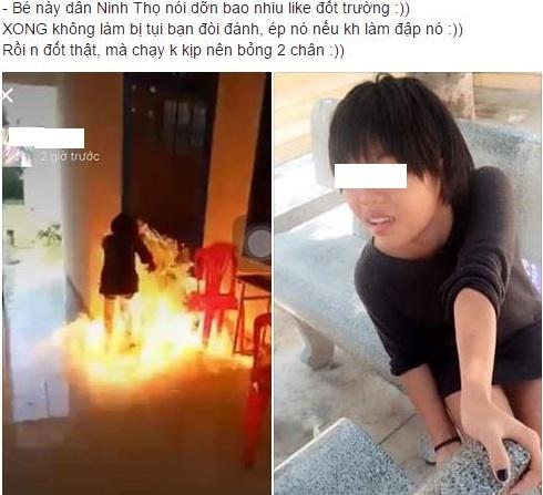 Nu sinh Khanh Hoa bi bong hai chan khi cham lua dot truong hinh anh 1