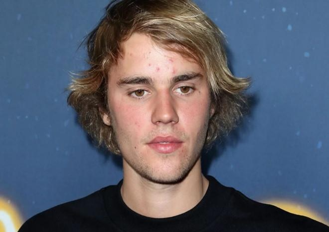 Justin Bieber mat mun anh 6