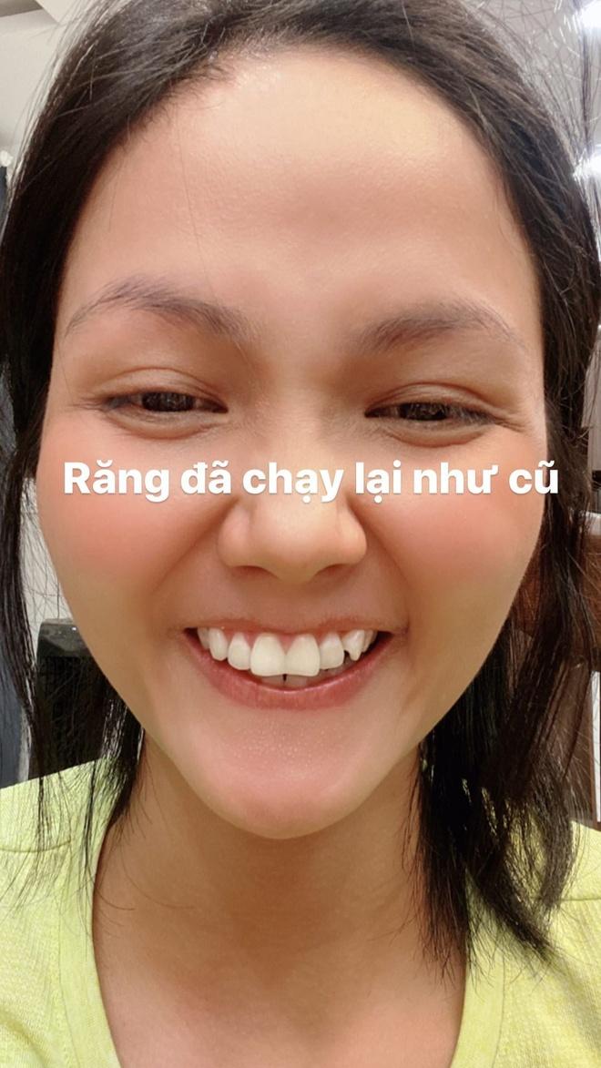 H'Hen Nie phu nhan lam rang su hinh anh 2 hhennie.official_90996862_110280520439065_8917892107879323552_n.jpg