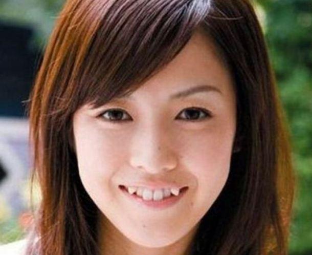 Nhung dieu la lung o Nhat Ban hinh anh 9 Răng khểnh giả: Phụ nữ Nhật rất thích có răng khểnh, nhiều người còn tiêu tốn hàng trăm đôla để gắn răng khểnh giả.