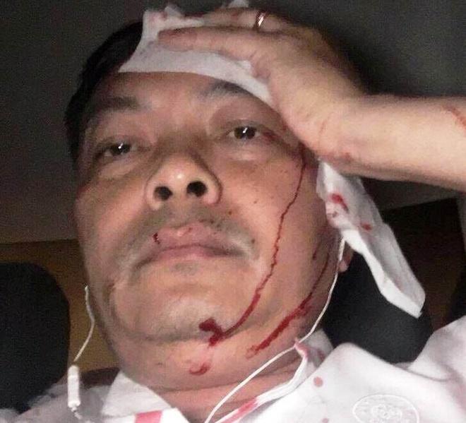 Giam doc nhan su Trung Nguyen bi danh: 'Toi khong mau thuan voi ai' hinh anh