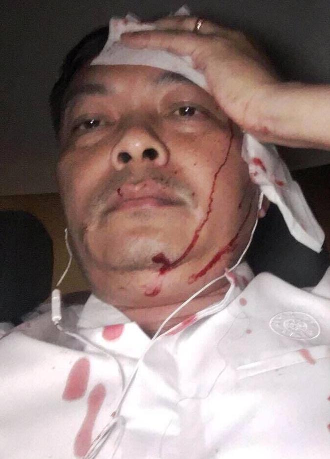 Giam doc nhan su ca phe Trung  Nguyen bi tan cong anh 1