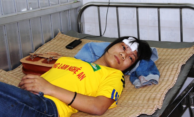Giay phut 2 xe khach dau dau lam 10 nguoi tu vong hinh anh 2 Nự công nhân Dương Thị Hồng Nhung đang nằm điều trị tại bệnh viện Hàm Thuận Nam.