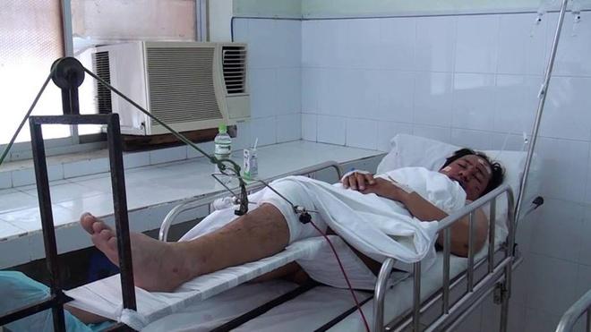 Cha con tu nan tren duong vao Sai Gon chua benh hinh anh 4 Tài xế Lê Văn Thanh đang nằm điều trị tại bệnh viện thành phố Phan Thiết.