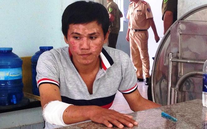 Truy bat ke cuop giat o Sai Gon, CSGT bi dinh mau co HIV hinh anh