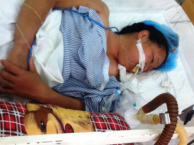 Nguy kich vi ran can khi dang ngu trua hinh anh 1 Bệnh nhân Năm liệt toàn thân đang điều trị tại trung tâm chống độc Bệnh viện Bạch Mai.