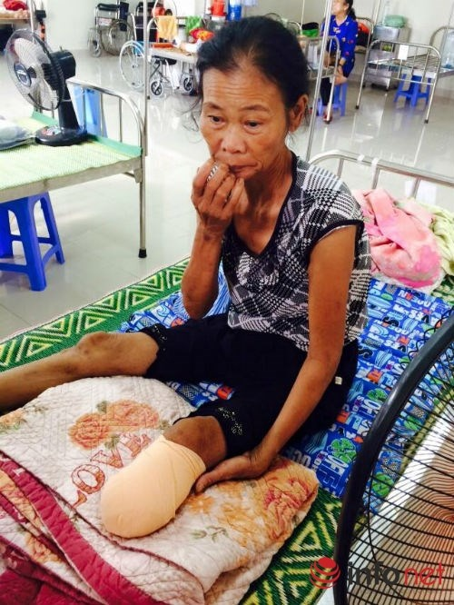 Mot tuan bi nhot, phai nhap vien cat chan hinh anh 1 Bà Gái vừa bị cắt chân vì biến chứng tiểu đường.