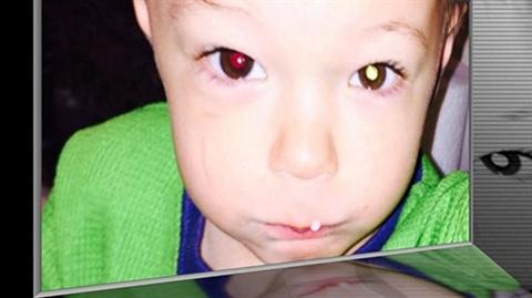 Chup anh cho be ban dem co the phat hien ra ung thu hinh anh 1 Chụp ảnh cho bé vào ban đêm có thể phát hiện ra ung thư.