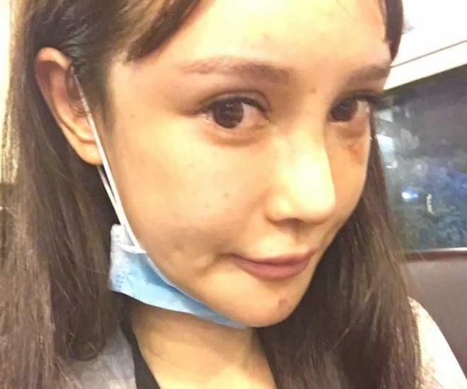 Hot girl Trung Quoc noi 'phau thuat tham my 300 lan' tu nam 14 tuoi hinh anh 4 20180706025847105.jpg