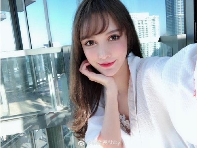 Hot girl Trung Quoc noi 'phau thuat tham my 300 lan' tu nam 14 tuoi hinh anh 6 926c02d7eff0fb530e1e8d46b94c55e4_1.jpg