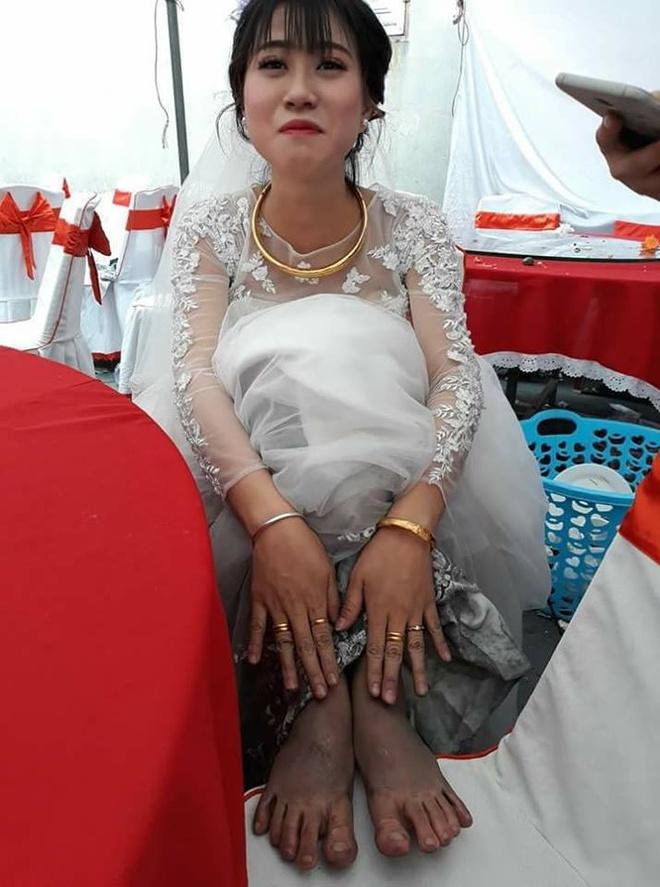 Cau chuyen dang sau doi chan lam lem cua co dau Quang Ninh hinh anh 1