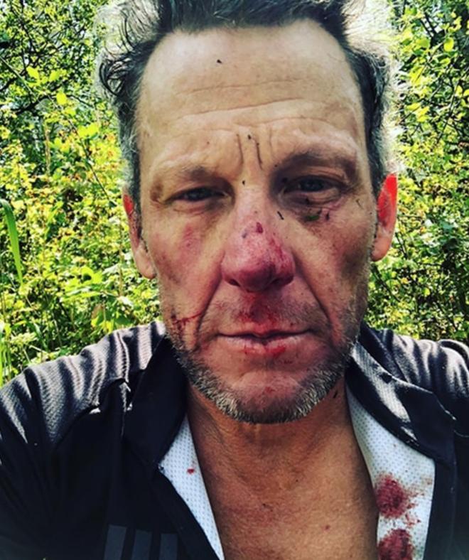 Cuu cua ro Lance Armstrong gap tai nan khi dap xe tren duong mon hinh anh 1