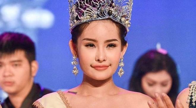 'Bo khong the nhay vao tuoc vuong mien cua Ngan Anh' hinh anh