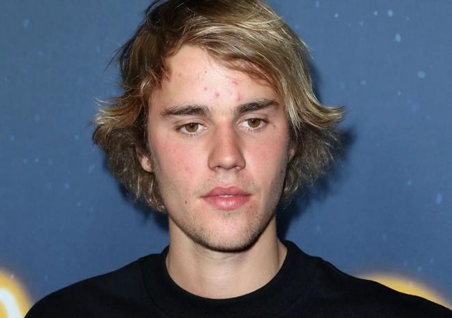 Justin Bieber lo mat day mun sau khi co tin don chia tay Selena Gomez hinh anh