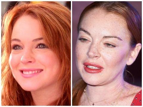 Lindsay Lohan: Ngoi sao nghien phau thuat tham my va gia coi o tuoi 32 hinh anh
