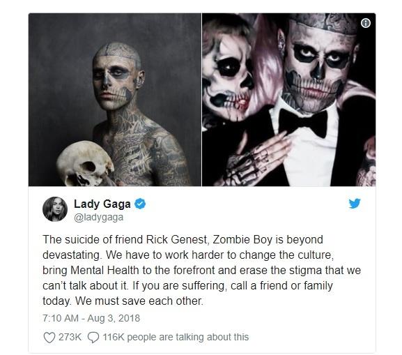 Gia dinh nghi cai chet cua Zombie Boy trong 'Born This Way' la tai nan hinh anh 2