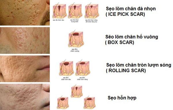 Nguoi Viet tin dung my pham tri seo ro 'made in Vietnam' hinh anh 2