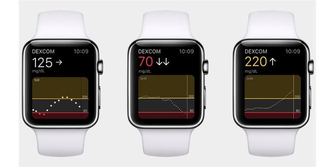Apple Watch theo doi suc khoe,  Apple Watch,  Apple anh 2