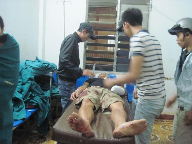 Nhat ban tay cua thanh nien bi chem dut di cap cuu hinh anh 1 anh Hoàng được cấp cứu tại bệnh viện Đa khoa tỉnh Đắk Lắk.