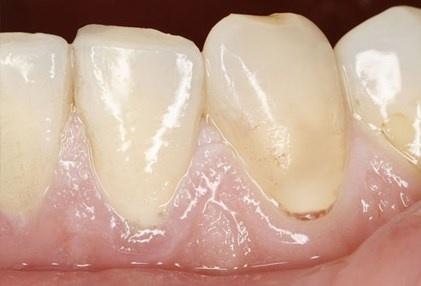 Nhin rang mieng, chan benh hinh anh 3 Miệng đau và nhạt màu nếu bạn đang thiếu máu, kể cả lưỡi có thể trở nên sưng phồng và mịn (viêm lưỡi).