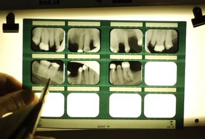 Nhin rang mieng, chan benh hinh anh 5 Người trưởng thành không còn răng có nguy cơ mắc bệnh thận mãn tính nhiều hơn so với những người còn răng.