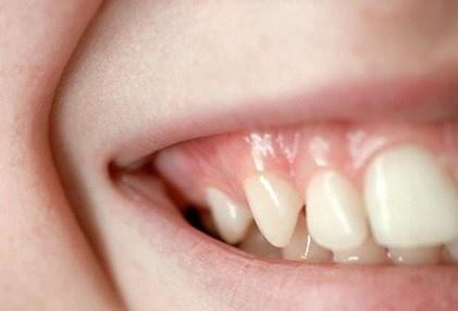 Nhin rang mieng, chan benh hinh anh 6 Nướu răng khỏe mạnh có màu hồng và vững chắc, không phải màu đỏ và sưng to.