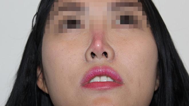 Nhu cau tham my tang, tai bien tang theo hinh anh 1 Mũi bị teo nhỏ và vẹo do biến chứng phẫu thuật nâng mũi.