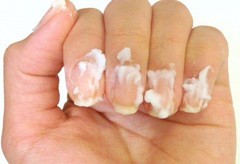 10 ways to expect your hands to look shiny and healthy 9 Baking soda helps to whiten nails very effectively.  Illustration.