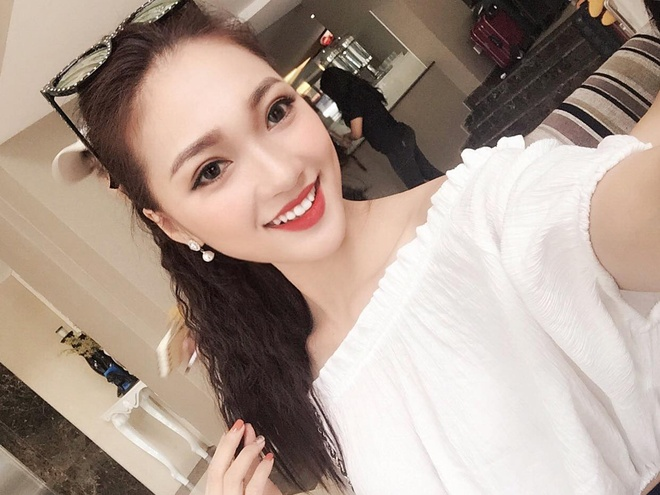 Top 10 ban ket Hoa hau Hoan vu gay tranh cai vi nu cuoi rang su hinh anh 5