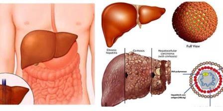 Dieu tri viem gan virus B, C dung cach giam nguy co tu vong hinh anh 1 Viêm ganB, C có thể gây xơ gan, ung thư gan.