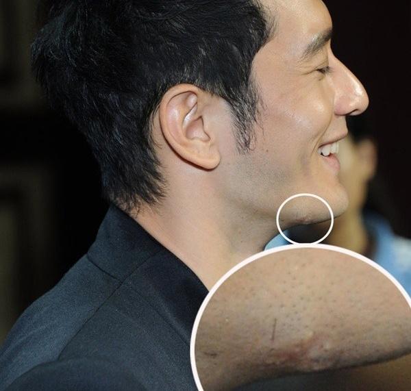 Huynh Hieu Minh lo seo nghi don cam hinh anh