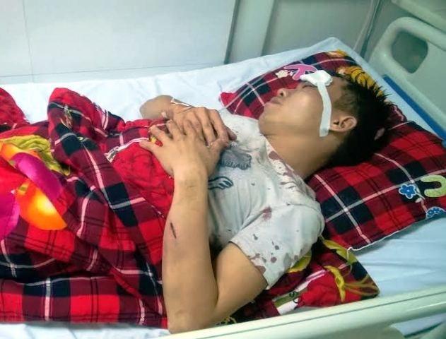 Dang an com, bi 15 ten con do xong vao nha chem hinh anh 1 Nạn nhân Dần phải nhập viện vì bị đánh thương tích.