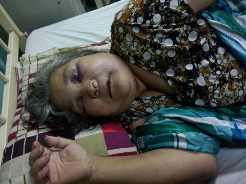 Cụ bà bị côn đồ dùng hung khí đánh bầm dập, thương tích nặng.