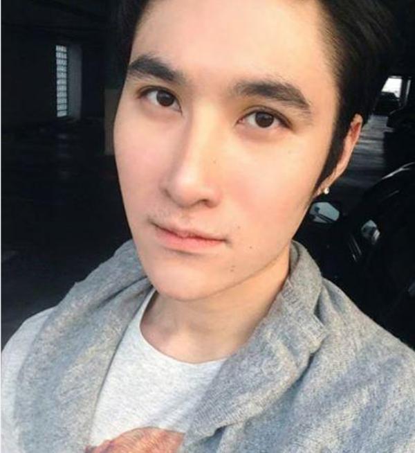 Chang trai xau xi thanh hot boy sau phau thuat tham my hinh anh 9