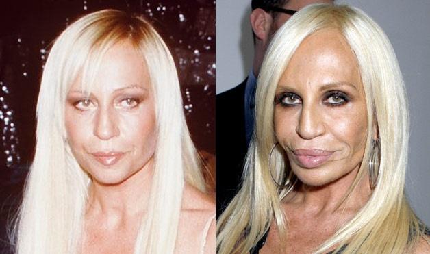 Sao Hollywood di dang vi lam dung chat lam day hinh anh 6 6. Donatella Versace: Nhà thiết kế thời trang nổi tiếng của thương hiệu Versace là một trong những tín đồ nghiện trùng tu nhan sắc. Tuy nhiên, thay vì trở nên xinh đẹp, bà lại là thảm họa thẩm mỹ ở Hollywood. Theo nhận định của các bác sĩ phẫu thuật ở New York, bà đã nâng mũi, bơm môi, căng da mặt, tiêm chất độn và botox. Đôi môi phình to, mũi hẹp, cơ mặt khó cử động là những điểm biến dạng trên khuôn mặt của Donatella. Ảnh: Womansday