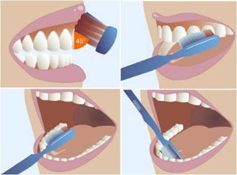 5 thoi quen anh huong xau toi rang mieng hinh anh 1 Phương pháp chải răng đúng cách.