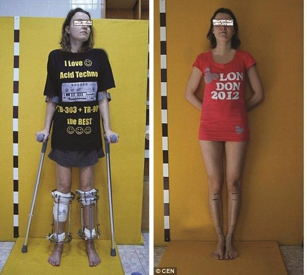 Noi dai chan tham my bang ky thuat Illizarov hinh anh 2 Alexandra Transer trước (trái) và sau phẫu thuật