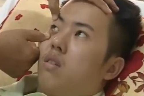 Soc Trang cuu song ca benh hiem gap tren the gioi hinh anh