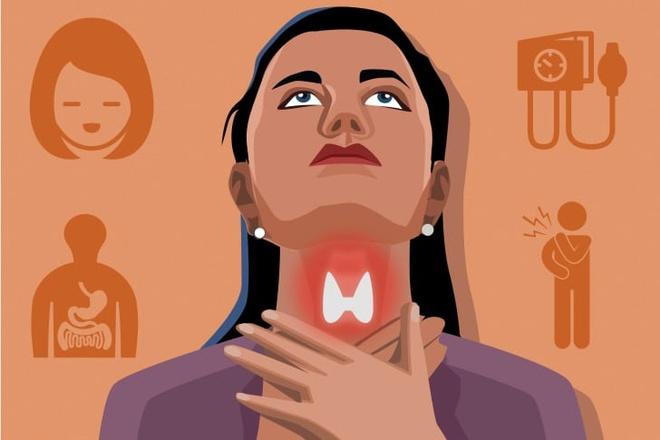 10 dấu hiệu cơ thể cảnh báo tuyến giáp có vấn đề