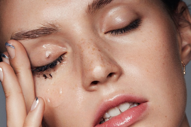 Eczema - can benh viem da khong the coi thuong hinh anh 4
