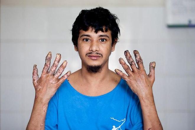13 nam khon kho cua 'nguoi cay' truoc khi xin cat cut tay hinh anh 7