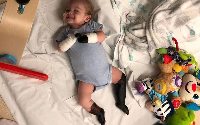 Sau 2 ngày viêm họng, bé trai 11 tháng tuổi hoại tử hết tay chân