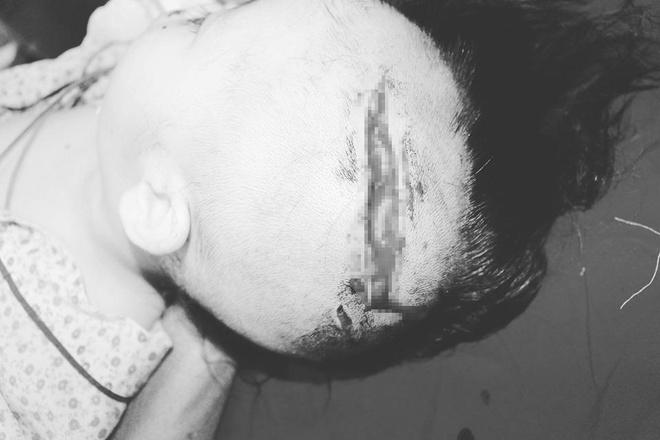 Bé 2 tuổi rách đầu, lộ xương sọ vì bị chó nhà tấn công