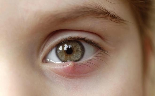 Triệu chứng bất thường ở mắt không nên bỏ qua