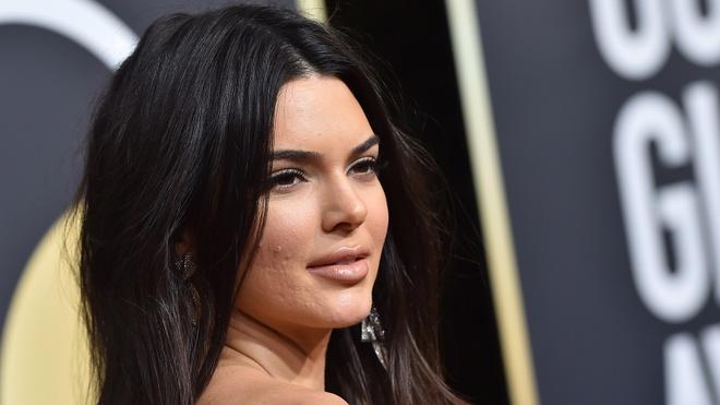Kendall Jenner bi che cuoi khi quang cao kem tri mun hinh anh 2