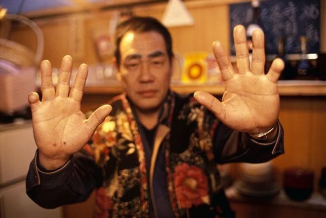 Nhung ban tay thieu ngon trong gioi yakuza hinh anh