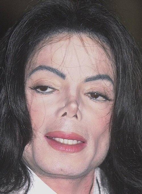 Nhung ngoi sao huy hoai da vi phau thuat tham my hinh anh 2  Lạm dụng phẫu thuật thẩm mỹ, khuôn mặt của Michael ngày càng biến đổi theo hướng… quái dị hơn.