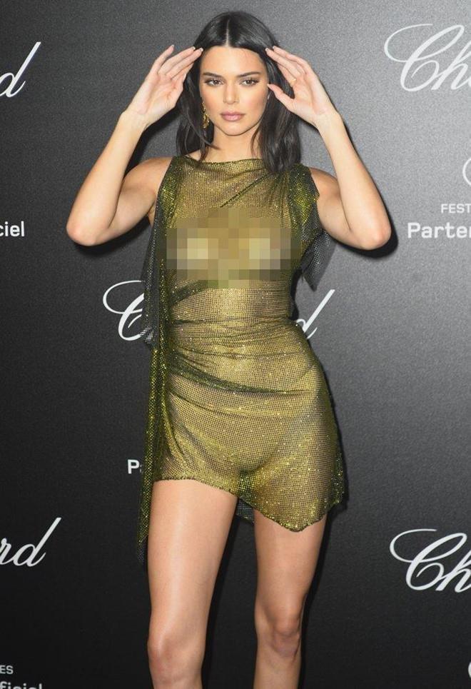 Kendall Jenner chuong mot vay lo nguc, cat xe qua da gay phan cam hinh anh 8